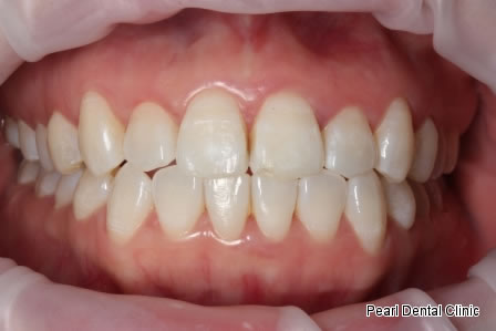 Invisalign Before After- Upper/Bottom full arch teeth