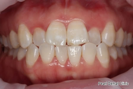Invisalign Before After - Upper/Bottom full arch teeth