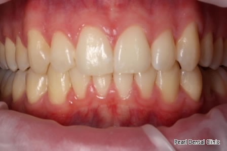 Invisalign Before After/ Frenectomy - Upper/Bottom full arch teeth