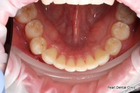 Invisalign Before After/ Frenectomy - Lower full arch teeth