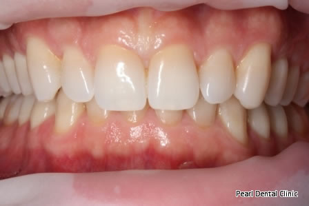 Invisalign Before After/ Cosmetic/ Bleaching - Full upper/lower arch teeth