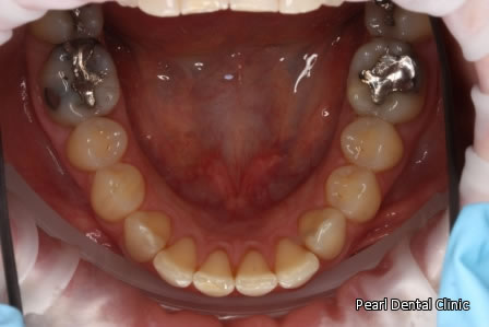 Invisalign Before After Anterior - Lower arch teeth