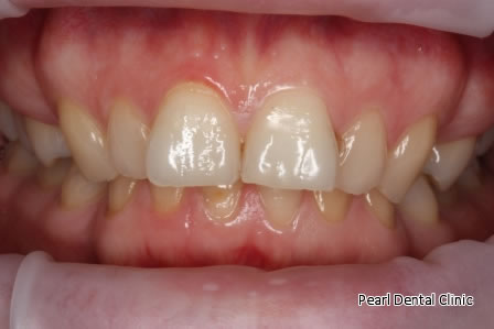 Invisalign Before After/ Bleaching - Upper/lower arch teeth