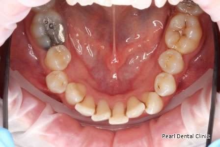 Invisalign Before After - Lower arch teeth