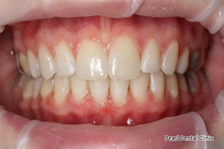 Invisalign Before After- Upper/lower arch teeth