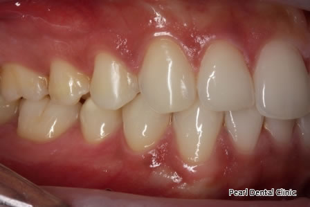 Invisalign Before After- Right upper/lower arch teeth
