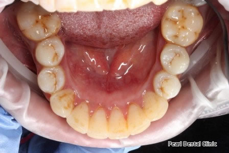 Invisalign Before AfterAnterior - Lower arch teeth