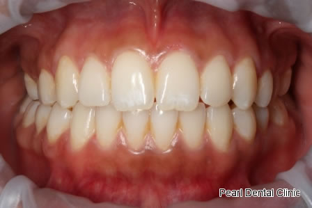 Invisalign Before After- Full top/bottom arch teeth