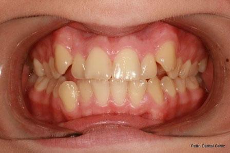 Invisalign Gallery 3 By Invisalign Dentist Orthodontist