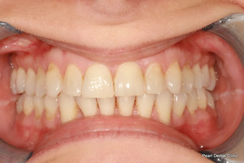 Teeth Invisalign/ Whitening Before After - Full upper/bottom arch teeth