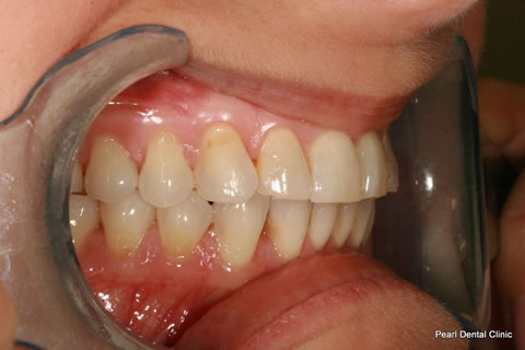 Teeth Invisalign/ Whitening Before After  - Right full upper/bottom arch teeth