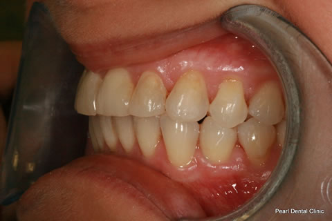 Teeth Invisalign/ Whitening Before After  - Left full upper/bottom arch teeth