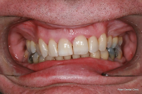 After Teeth Invisalign Anterior - Full upper/bottom arch teeth