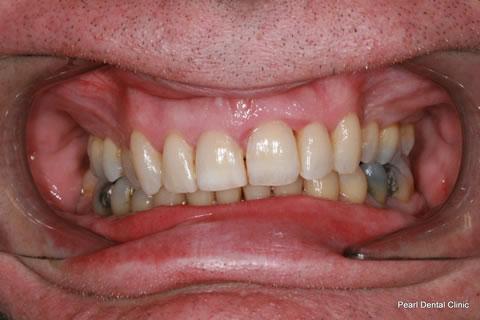 After Teeth Invisalign Anterior - Full upper/bottom arch teeth