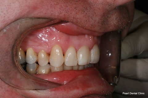 After Teeth Invisalign Anterior - Right full upper/bottom arch teeth
