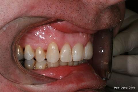 After Teeth Invisalign Anterior - Right full upper/bottom arch teeth