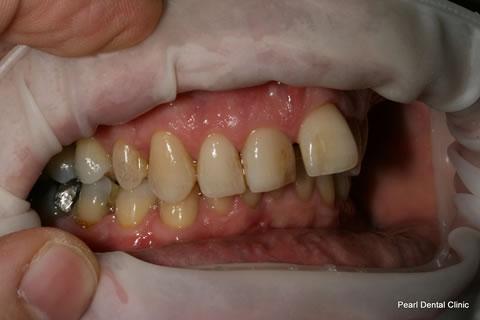 Before Teeth Invisalign Anterior - Right full upper/bottom arch teeth
