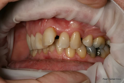 Before Teeth Invisalign Anterior - Left full upper/bottom arch teeth