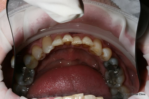 Before Teeth Invisalign Anterior - Lower arch teeth