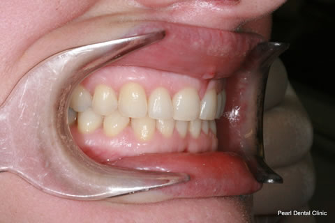 After Anterior Invisalign/ Whitening - Right upper full arch teeth