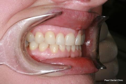 After Anterior Invisalign/ Whitening - Right upper full arch teeth