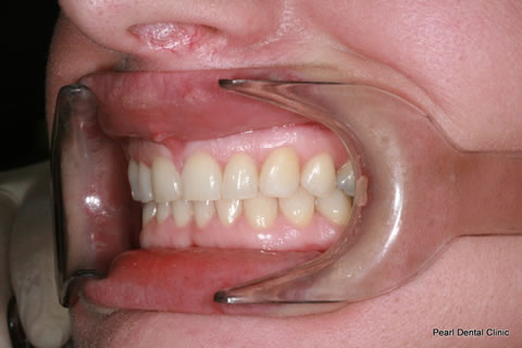 After Anterior Invisalign/ Whitening - Left upper full arch teeth