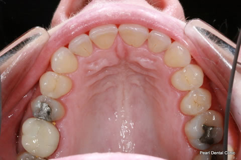 After Anterior Invisalign/ Whitening - Upper full arch teeth