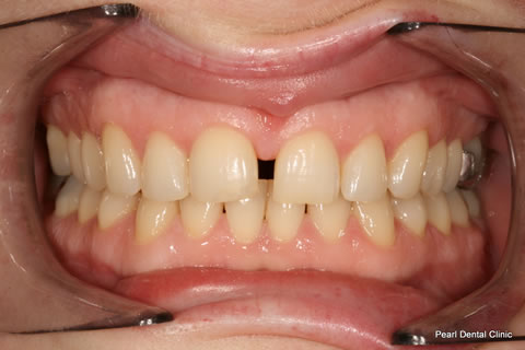 Before Anterior Invisalign/ Whitening - Upper/bottom full arch teeth