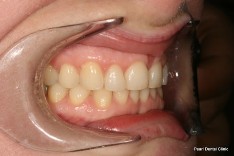 Before Anterior Invisalign/ Whitening - Right upper full arch teeth
