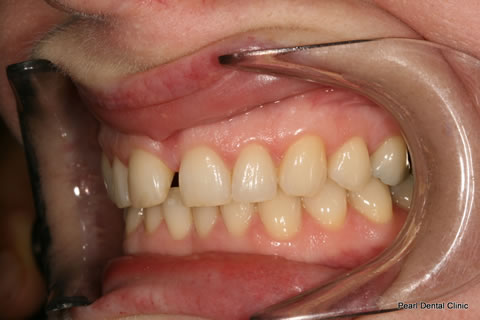 Before Anterior Invisalign/ Whitening - Left upper full arch teeth