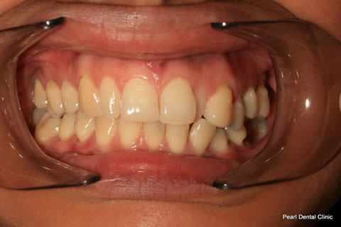 Before Anterior Invisalign/ Whitening/ Composite - Upper/bottom full arch teeth