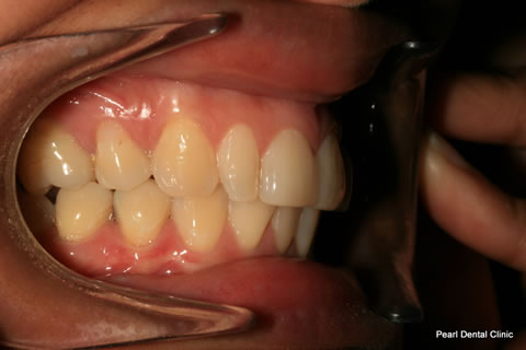 Before Anterior Invisalign/ Whitening/ Composite - Right upper/bottom full arch teeth