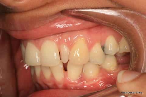 Before Anterior Invisalign/ Whitening/ Composite - Left upper/bottom full arch teeth