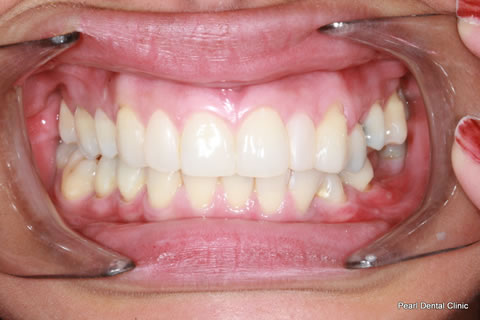 After Anterior Invisalign/ Whitening/ Composite - Upper full arch teeth
