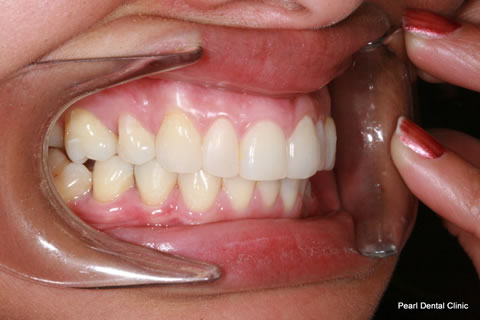 After Anterior Invisalign/ Whitening/ Composite - Right upper/bottom full arch teeth