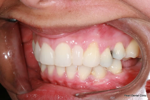 After Anterior Invisalign/ Whitening/ Composite - Left upper/bottom full arch teeth