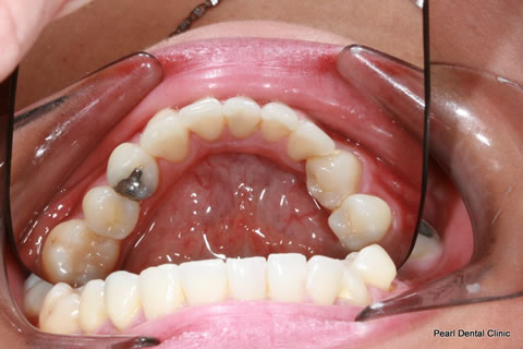 After Anterior Invisalign/ Whitening/ Composite - Lower full arch teeth