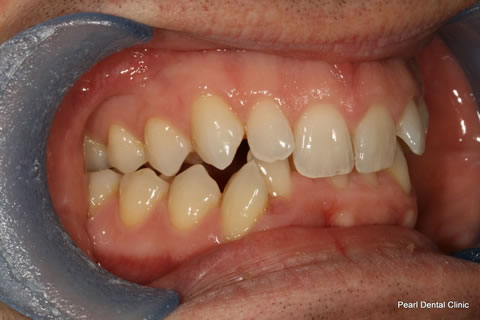Before Anterior Invisalign/ Whitening - Right upper/bottom full arch teeth
