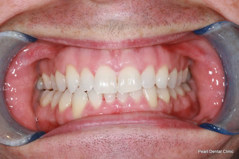 After Anterior Invisalign/ Whitening - Upper/bottom full arch teeth