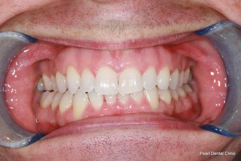 After Anterior Invisalign/ Whitening - Upper/bottom full arch teeth