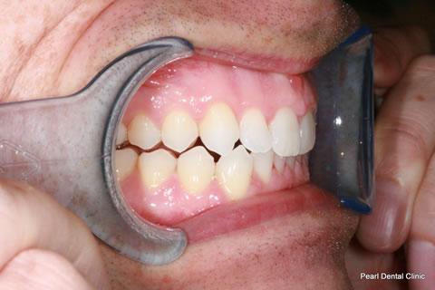 After Anterior Invisalign/ Whitening - Left upper/bottom full arch teeth
