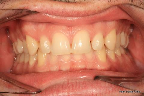 Before Invisalign/ Whitening - Upper/bottom full arch teeth