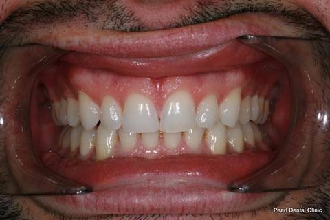 After Invisalign/ Whitening - Upper/bottom full arch teeth