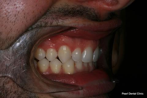 After Invisalign/ Whitening - Right Upper/bottom full arch teeth