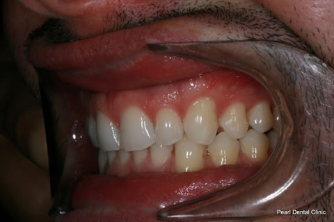 After Invisalign/ Whitening - Left Upper/bottom full arch teeth