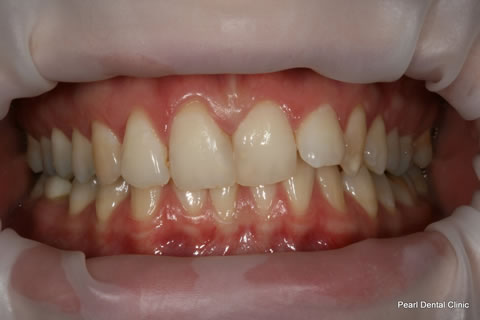Before Invisalign/ Whitening - Upper/bottom full arch teeth