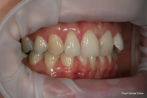Before Invisalign/ Whitening - Right Upper/bottom full arch teeth