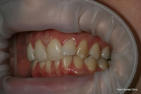 Before Invisalign/ Whitening - Left Upper/bottom full arch teeth