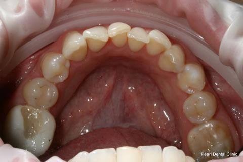 Before Invisalign/ Whitening - Bottom full arch teeth