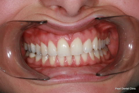 After Invisalign/ Whitening - Upper/bottom full arch teeth